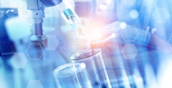 Exit via IPO: Der Finanzinvestor Cinven will die Laborkette Synlab noch im ersten Halbjahr 2021 an die Börse bringen.