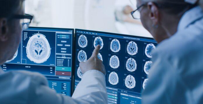 Den Umsatz verdreifacht, den Gewinn exorbitant gesteigert: Triton verkauft Meine Radiologie nach nicht einmal drei Jahren an den nächsten Private-Equity-Investor.